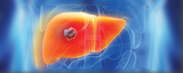 The threat of liver cancer remains despite successful HCV treatment