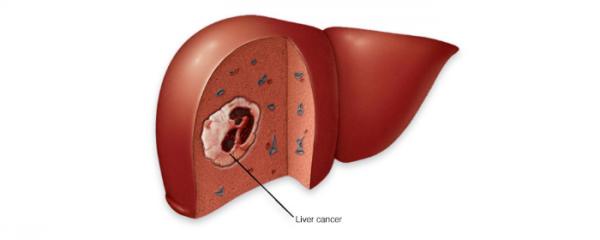 C型肝炎療程後發現巨大肝癌
