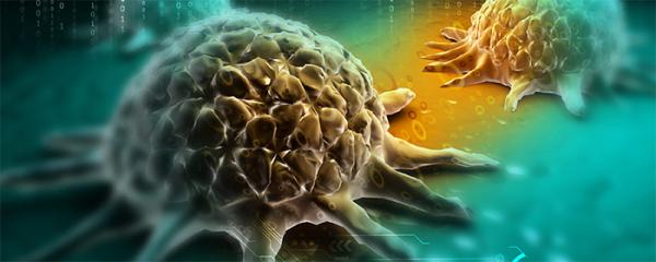 肥胖和糖尿病都會導致肝癌?!