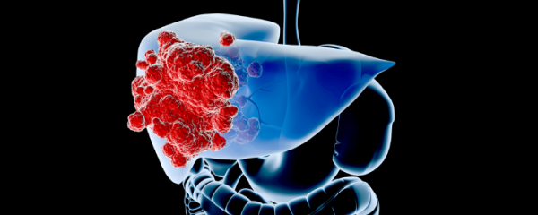 87.6% Increases on liver cancer related deaths.