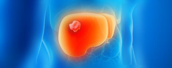 Reduce your chances of getting Liver Cancer (HCC)