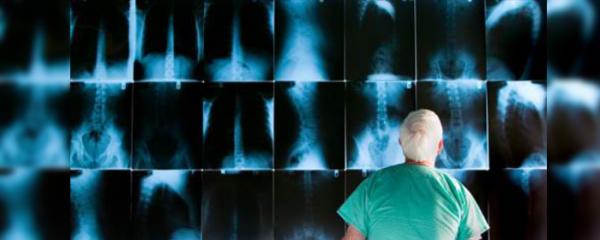 Liver cancer number is skyrocketing, are you at risk?